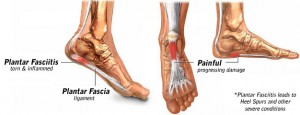 Plantar Fasciitis in Thousand Oaks and Agoura Hills