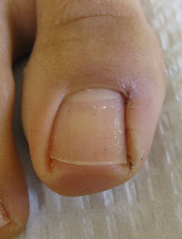 A Beautiful Solution to Ingrown Nails