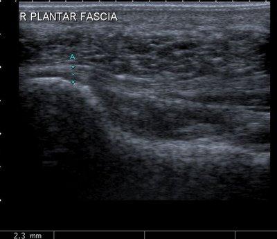 ultrasound machine for plantar fasciitis
