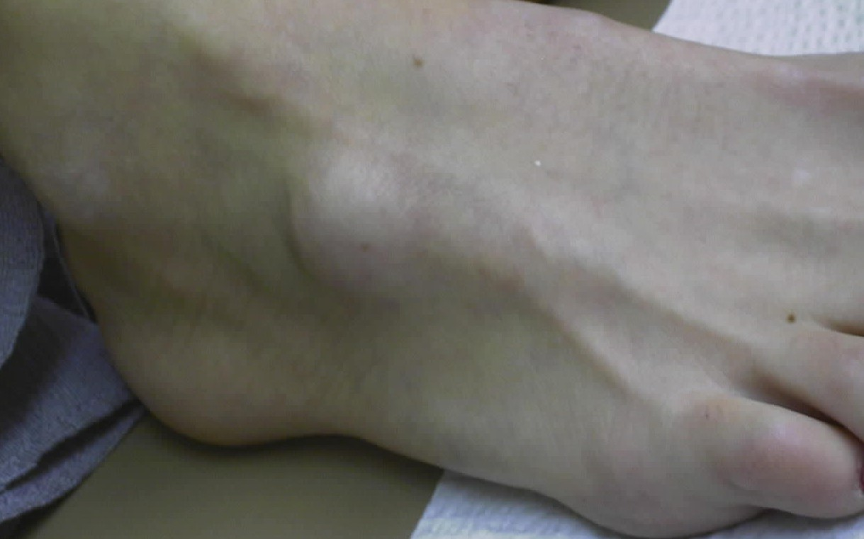 Ganglion cyst in Thousand Oaks
