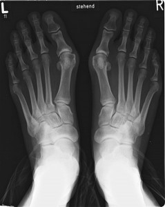 X-ray of bunions showing swelling