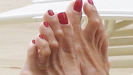 A bad case of hammertoes in Thousand Oaks