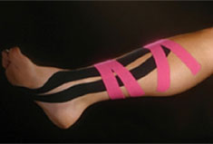 Kinesio Taping on Leg