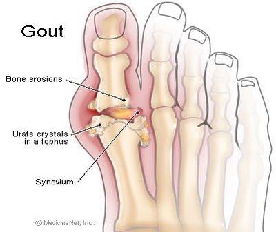 gout22
