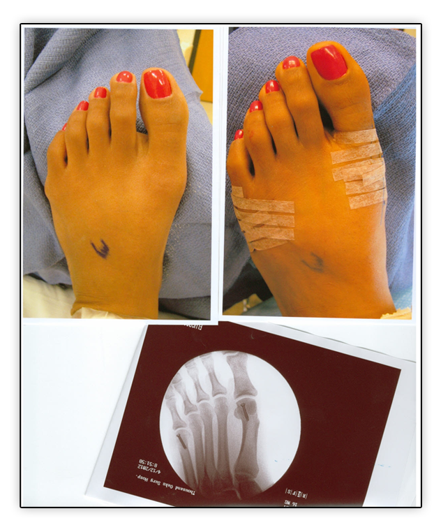Michael Zapf, surgeon and podiatrist in Thousand Oaks and Agoura Hills, discusses the presence of a bunion and tailor's bunion.